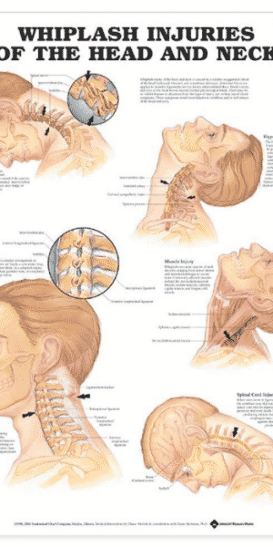 Whiplash injuries of head and neck Chart